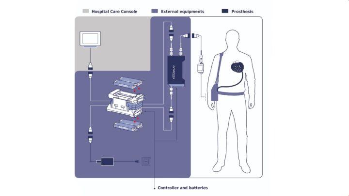 1626881978 727 Premier coeur entierement artificiel transplante avec succes chez un patient