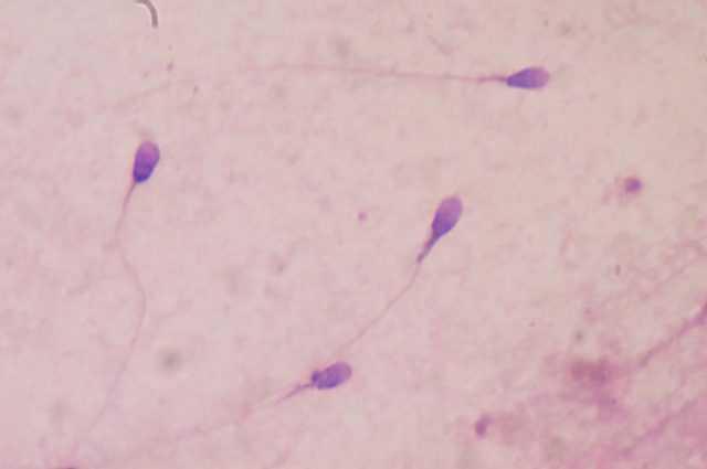 Un Contraceptif Révolutionnaire à Base D'anticorps Monoclonaux Immobilise Les Spermatozoïdes