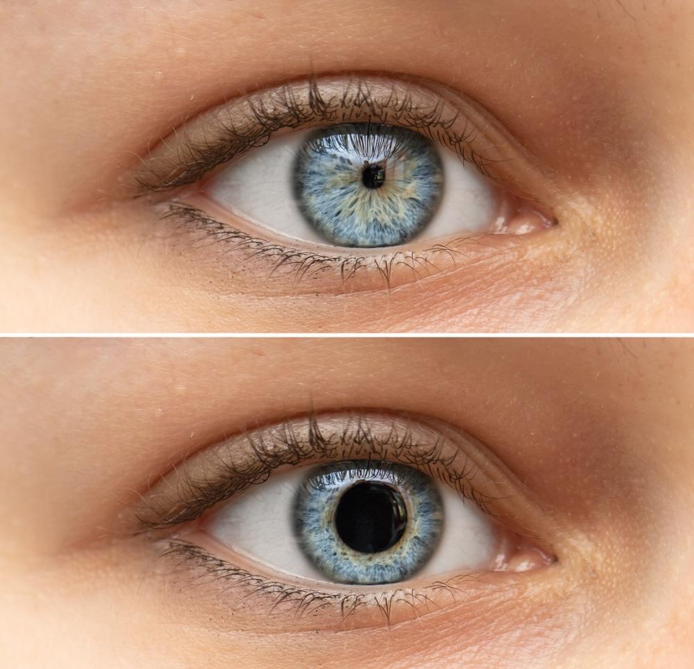 Un jeune Allemand peut changer la taille de ses pupilles